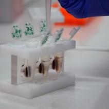 Processo de extração de DNA